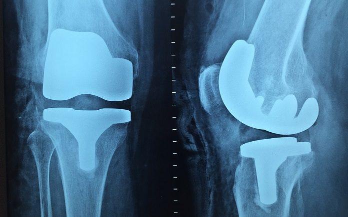respuesta implantes