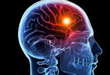 deteccion precoz infartos cerebrales